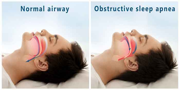 normal-obstructive-sleep-apnea1