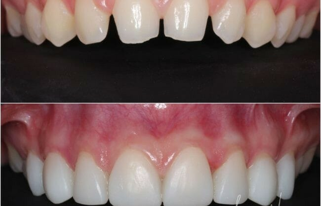 veneers-before-and-after